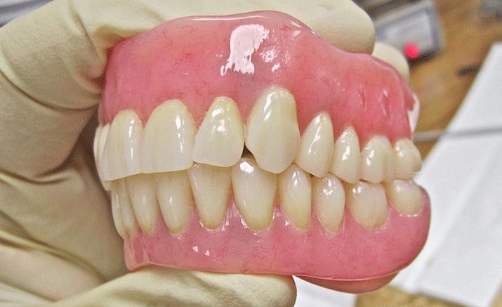 一般的な保険の入れ歯1